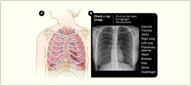 Scar On Lung X-ray